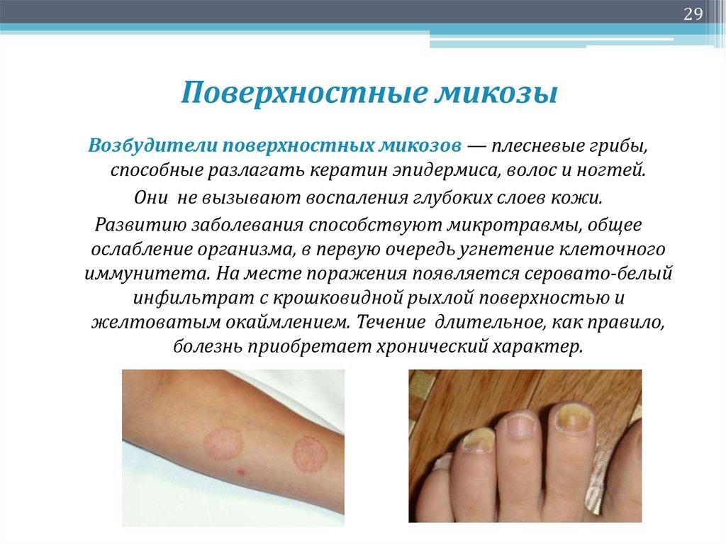 Грибок ногтей на ногах лазером цена