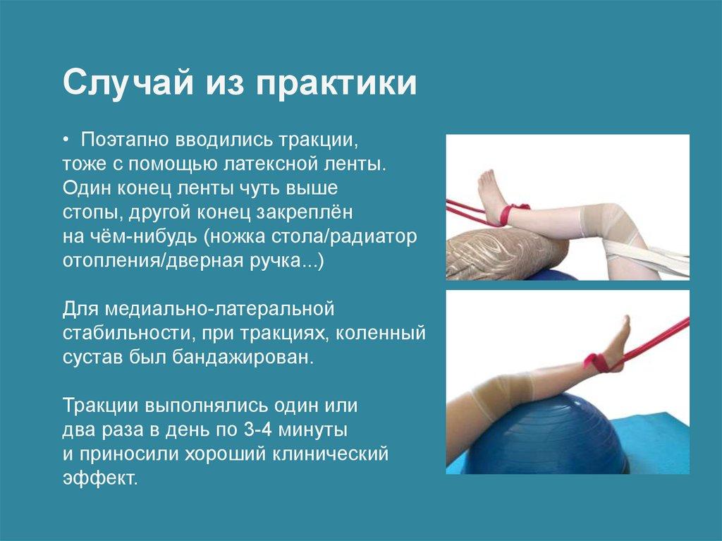остеохондроз его лечение коленное сустав