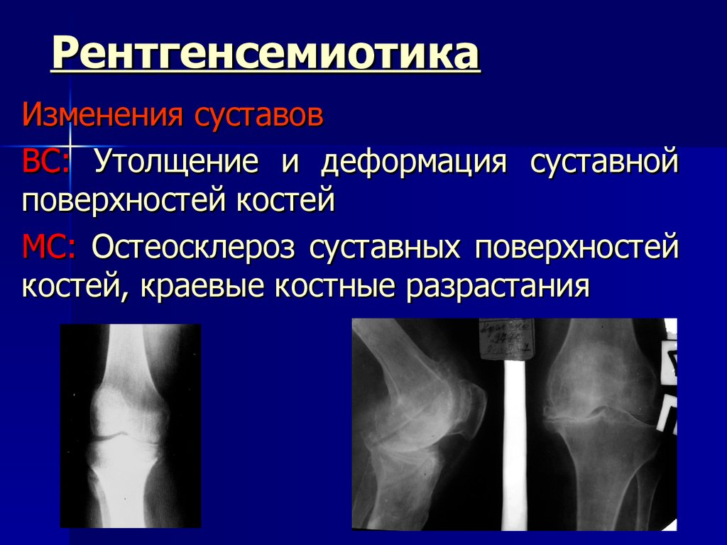 диагностика туберкулеза костей и суставов пцр цена