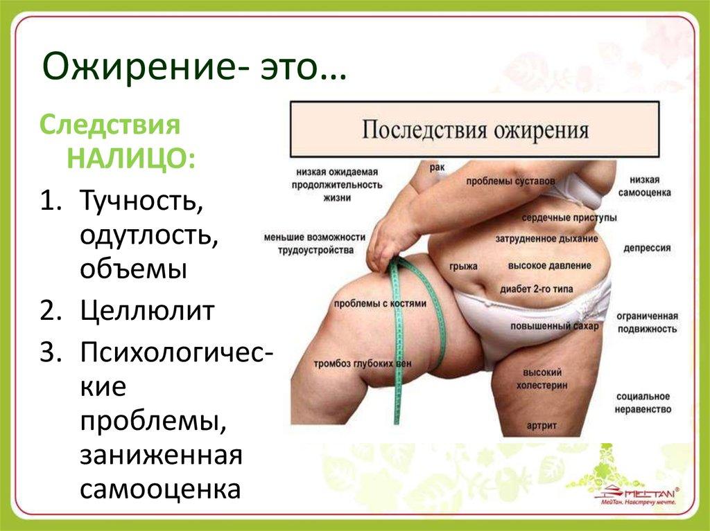 как похудеть без проблем