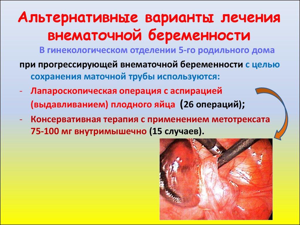 Острый живот внематочная беременность