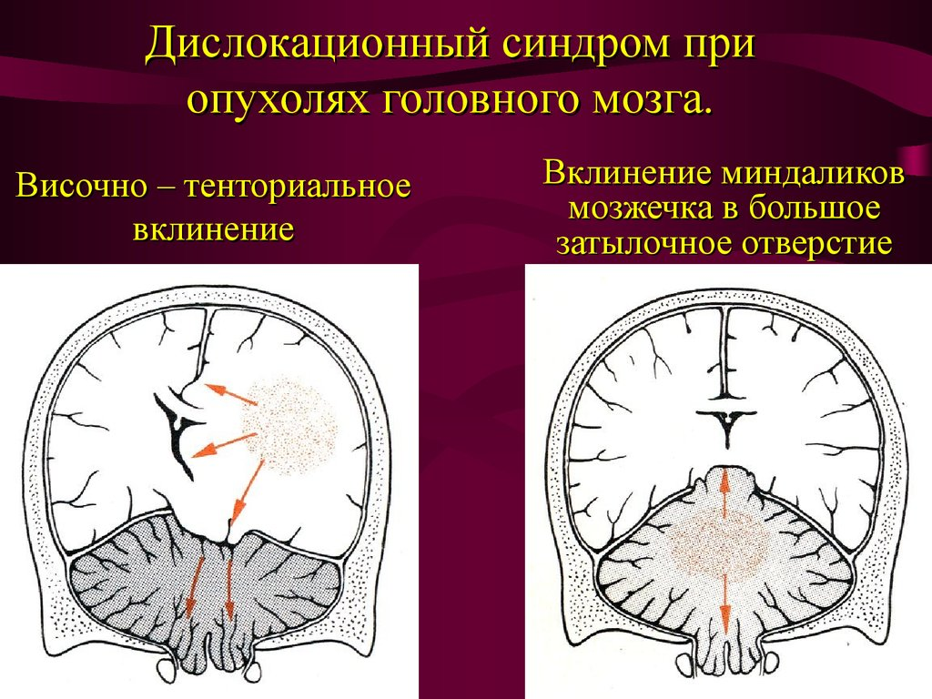 отчего головная боль у ребенка