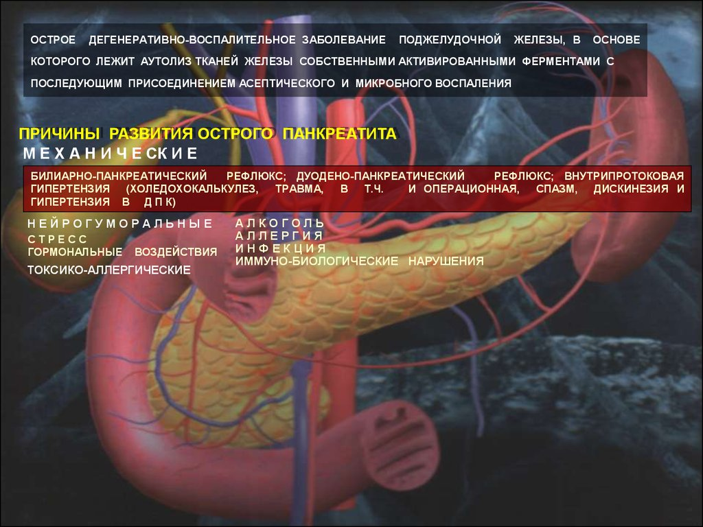 acute pancreatitis nhg