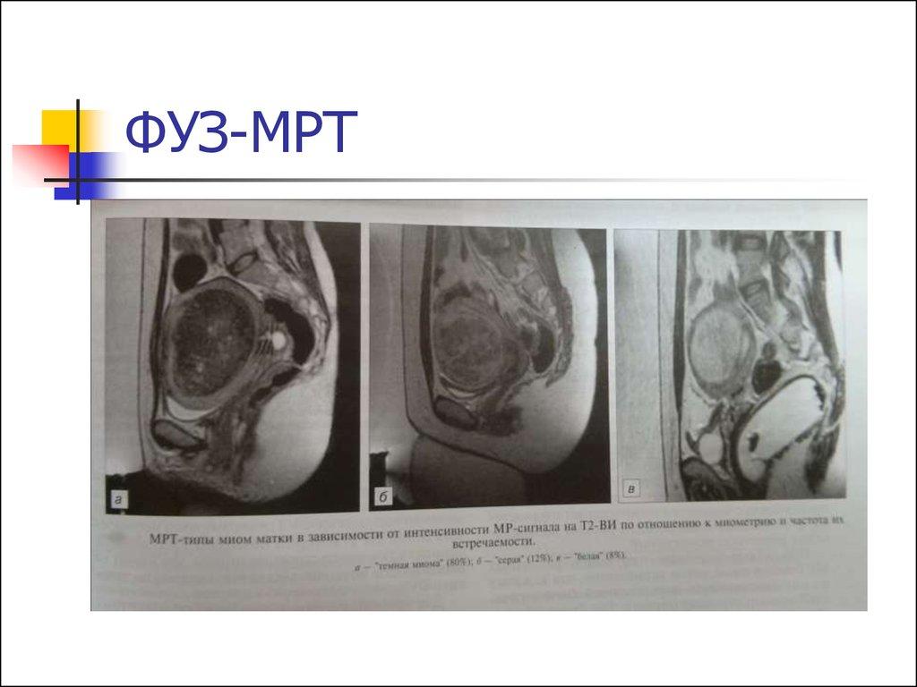 Миома матки. Диагностика и лечение - online presentation
