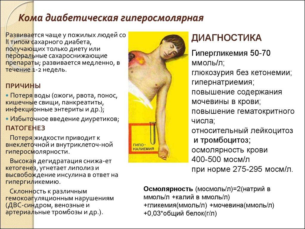 Диабетическая кома
