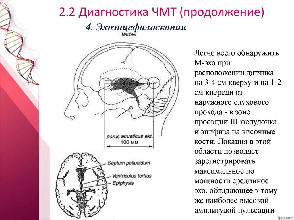 Как лечит сотрясение головного мозга в домашних условиях 919