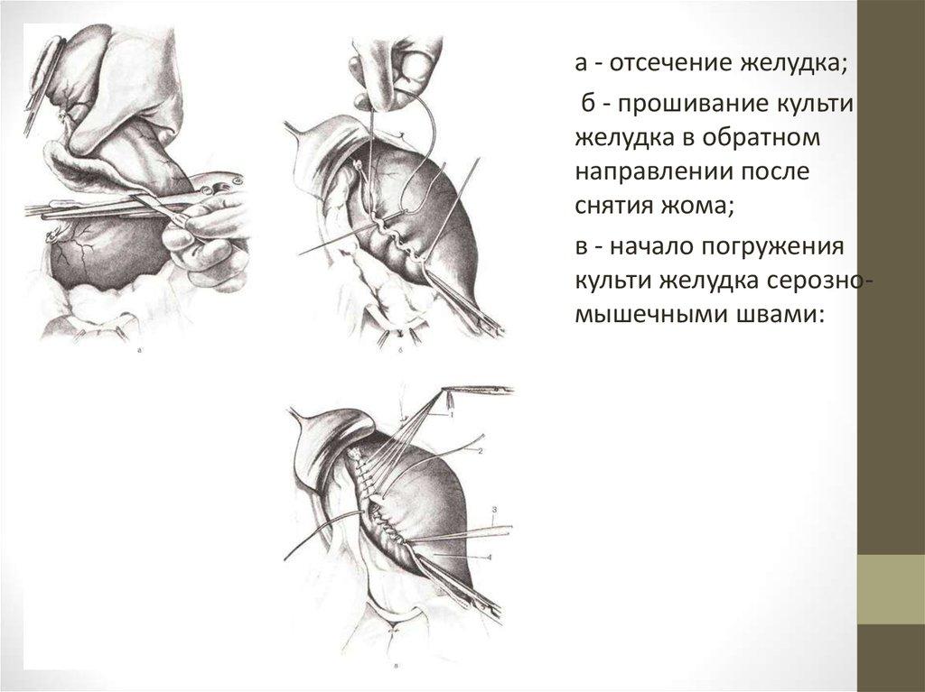 Боль в спине в области почки слева