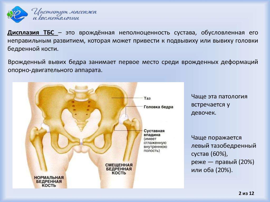 дисплазия тазобедренных суставов лечить