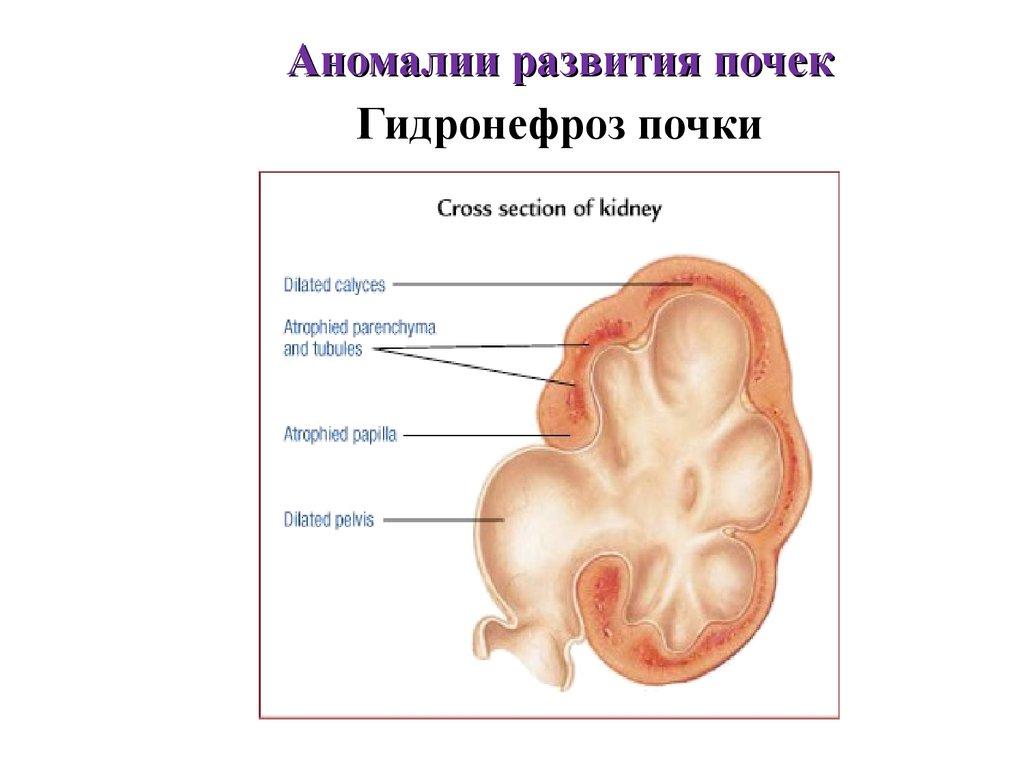 Гидронефроз у беременных 2 степени 36