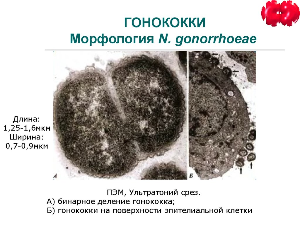 "neisseria gonorrhea Neisseria gonorrhoeae (""the gonococcus"")– gonorrhea  reading assignments: (1) text chapter 14, 66 (2) plates 95, 96, and 98, in kapit, w and lm elson 1977the anatomy coloring book, harper and row publishers, new york."