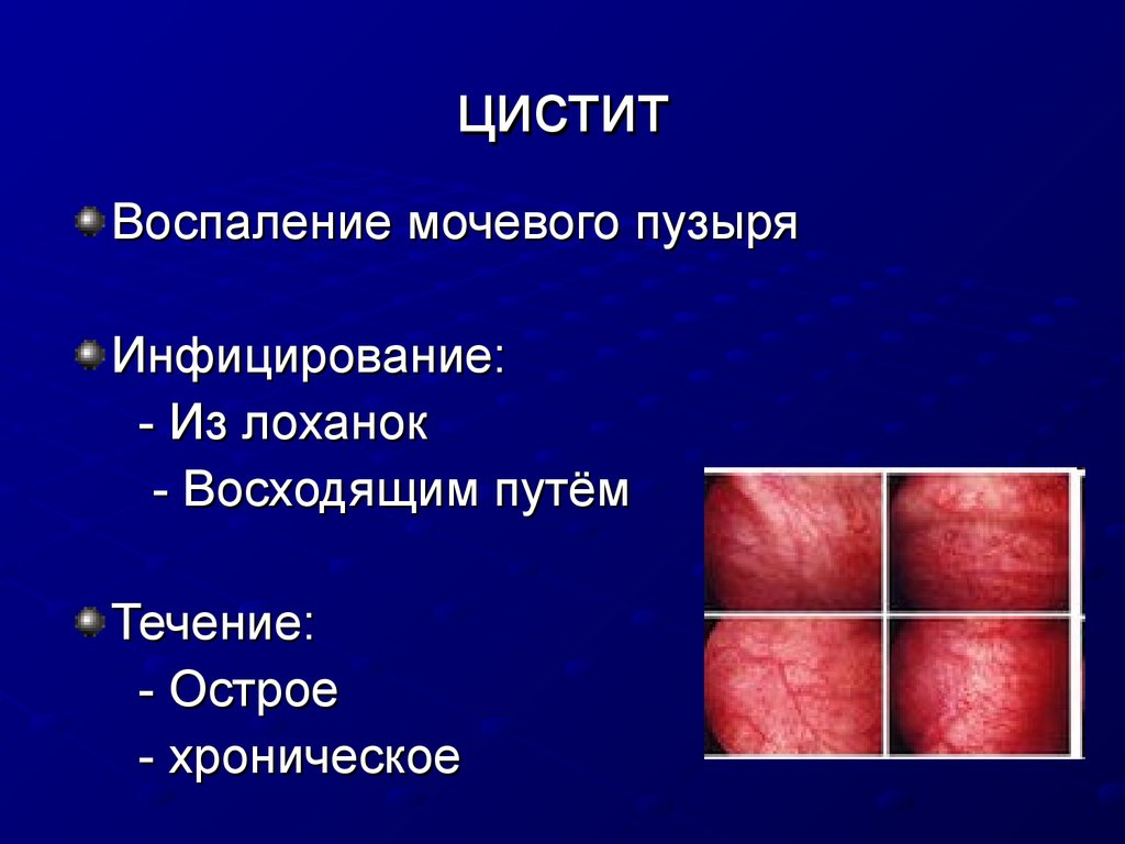 Уход за урологическими больными - online presentation