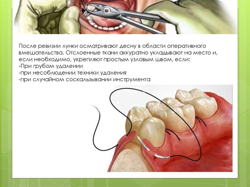 Альвеолит после удаления зуба как лечить в домашних условиях 8