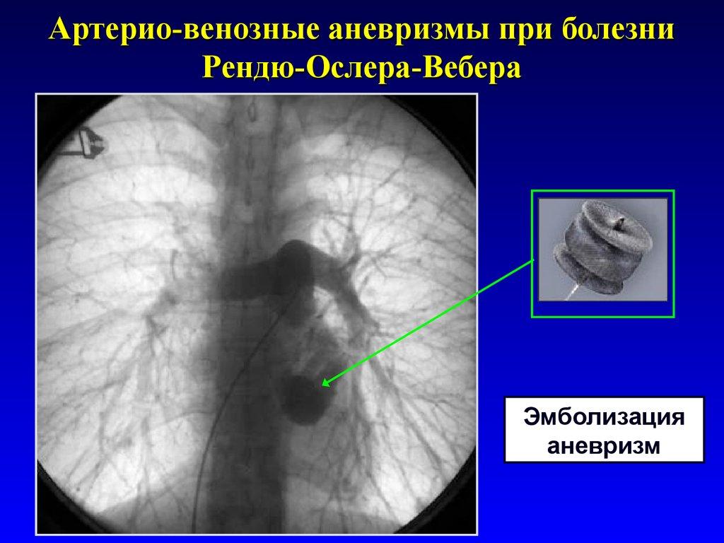 Артерио-венозные теплообменники теплообменник мтз 1025 съемный масляный фильтр