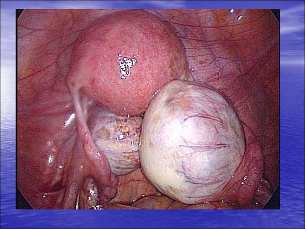 Benign tumors of the female genital organs - презентация онлайн