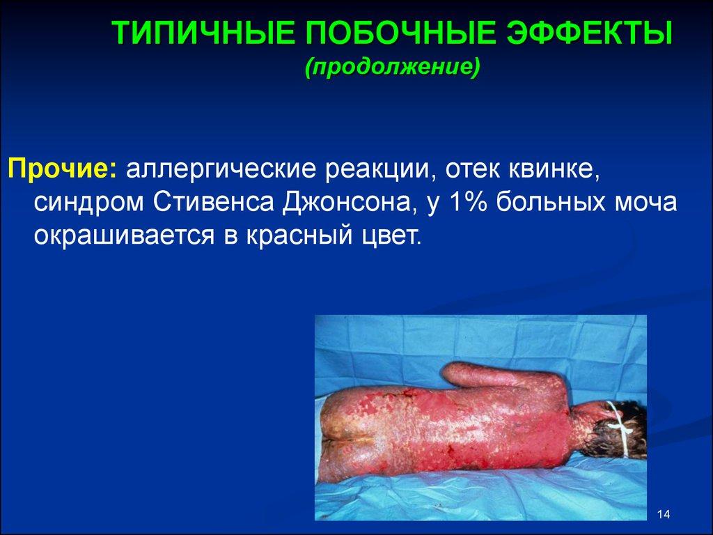 побочное действие статинов доктор мясников