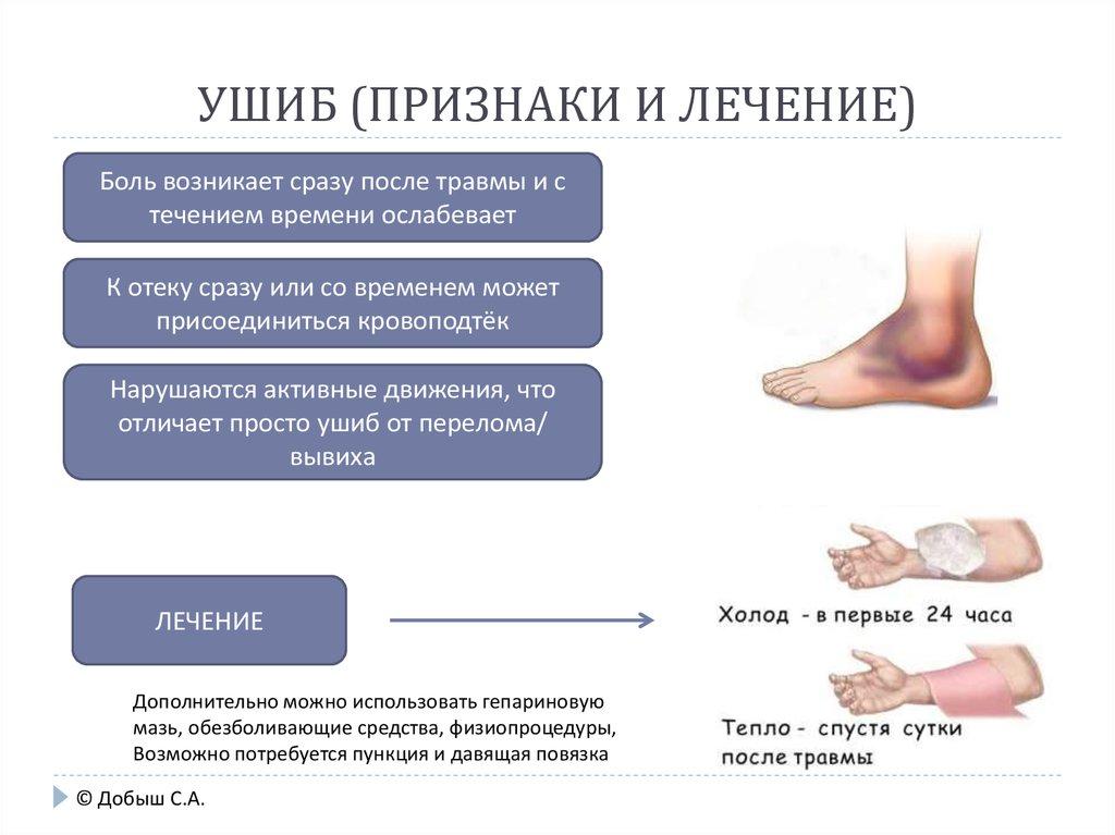 Ушибы и гематомы лечение в домашних условиях 393