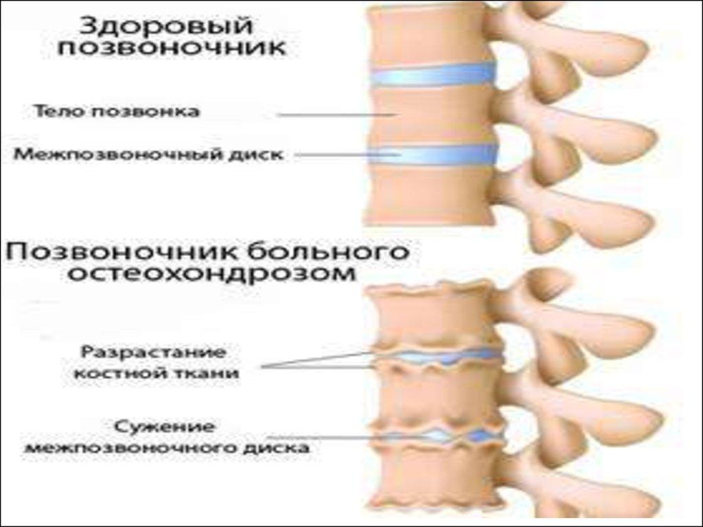 Болезнь остеохондроз ноги