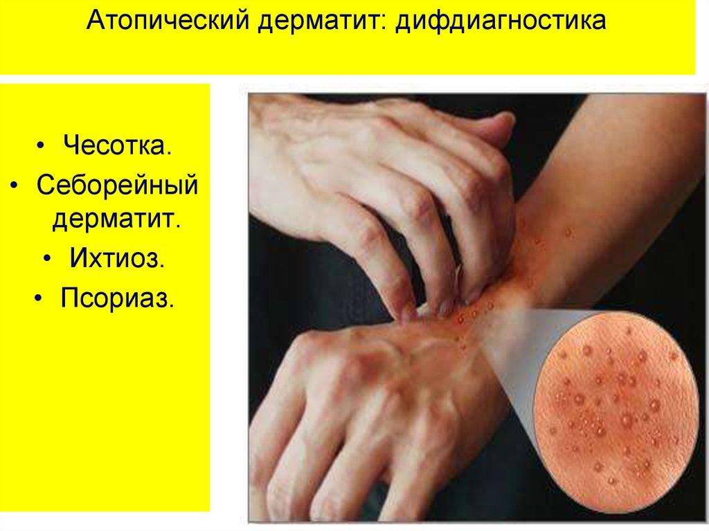 Лечение экземы фракцией асд отзывы