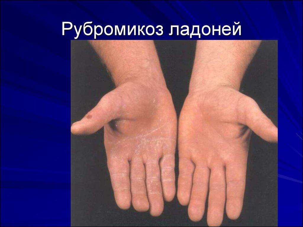 Как и чем лечить грибок кожи у детей