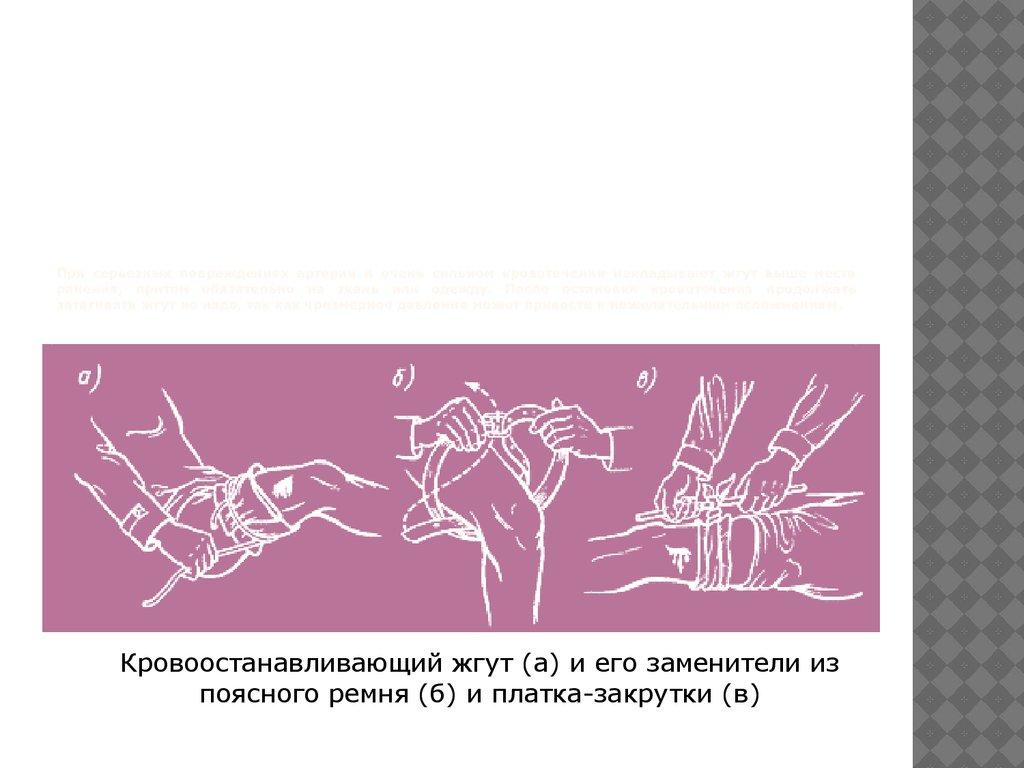 схема оказания первой помощи при крововтечениях