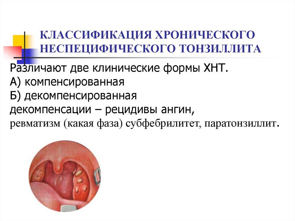 Хронический компенсированный тонзиллит симптомы