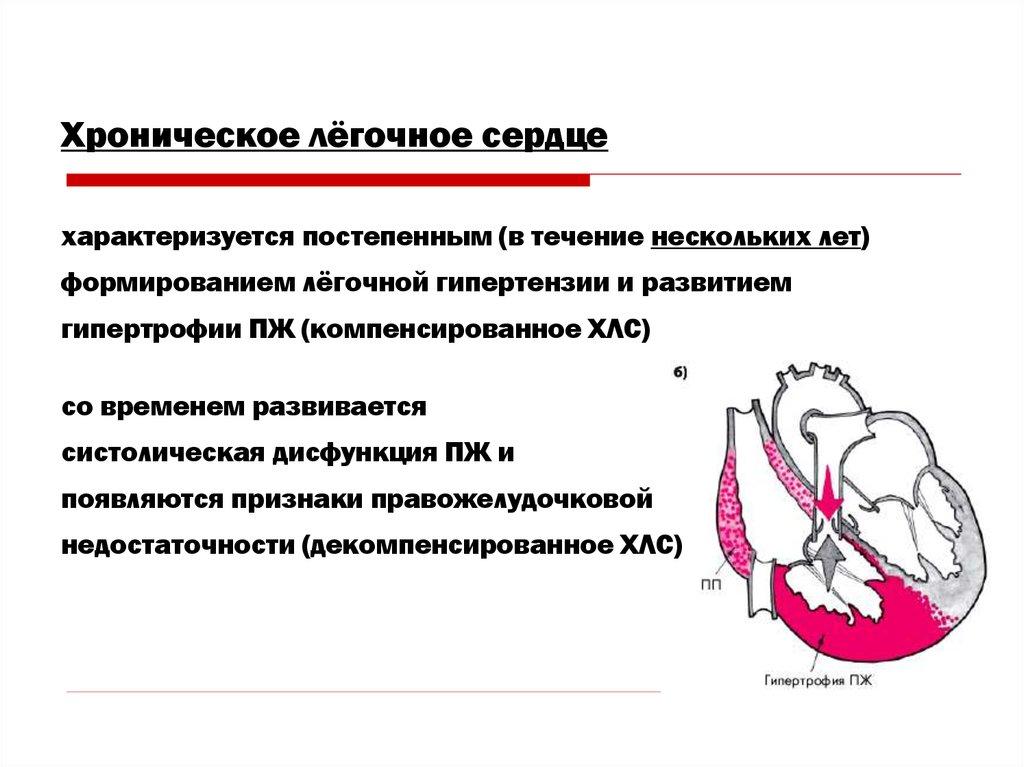 Лёгочная гипертензия. Лёгочное сердце - презентация онлайн