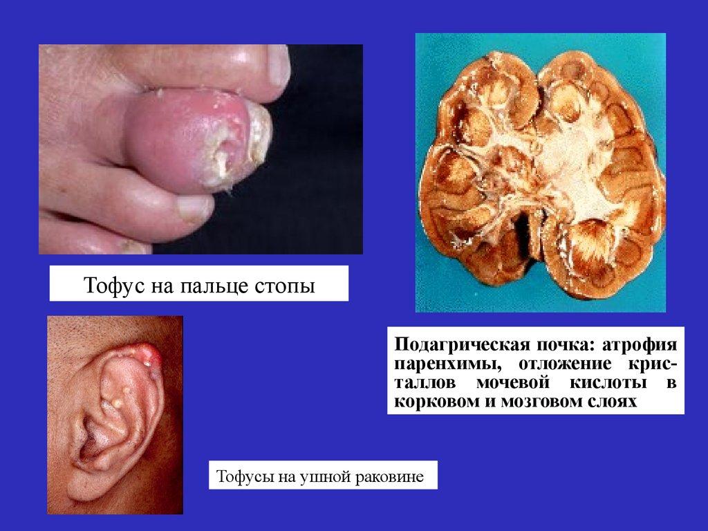 тубулоинтерстициальный нефрит симптомы
