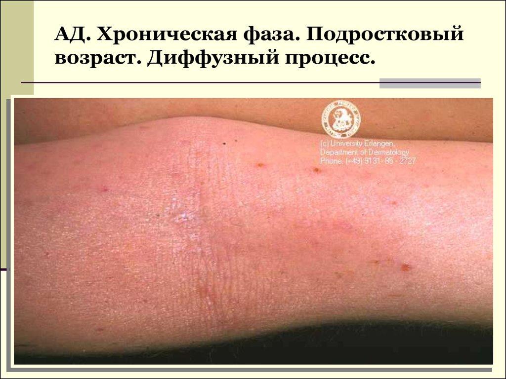 Как лечат дерматит