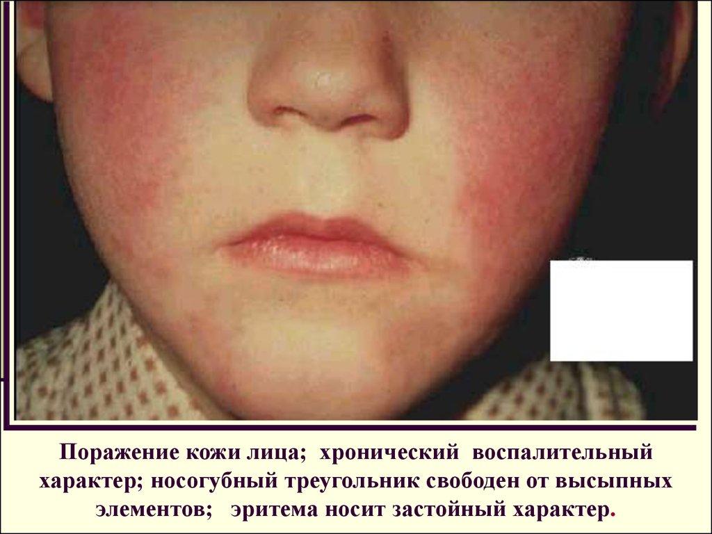 Показать атопический дерматит
