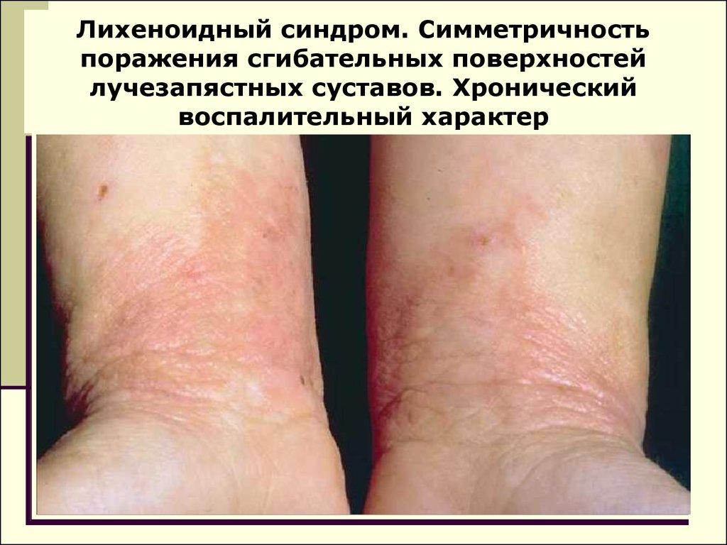 Эффективное народное средство лечение псориаза