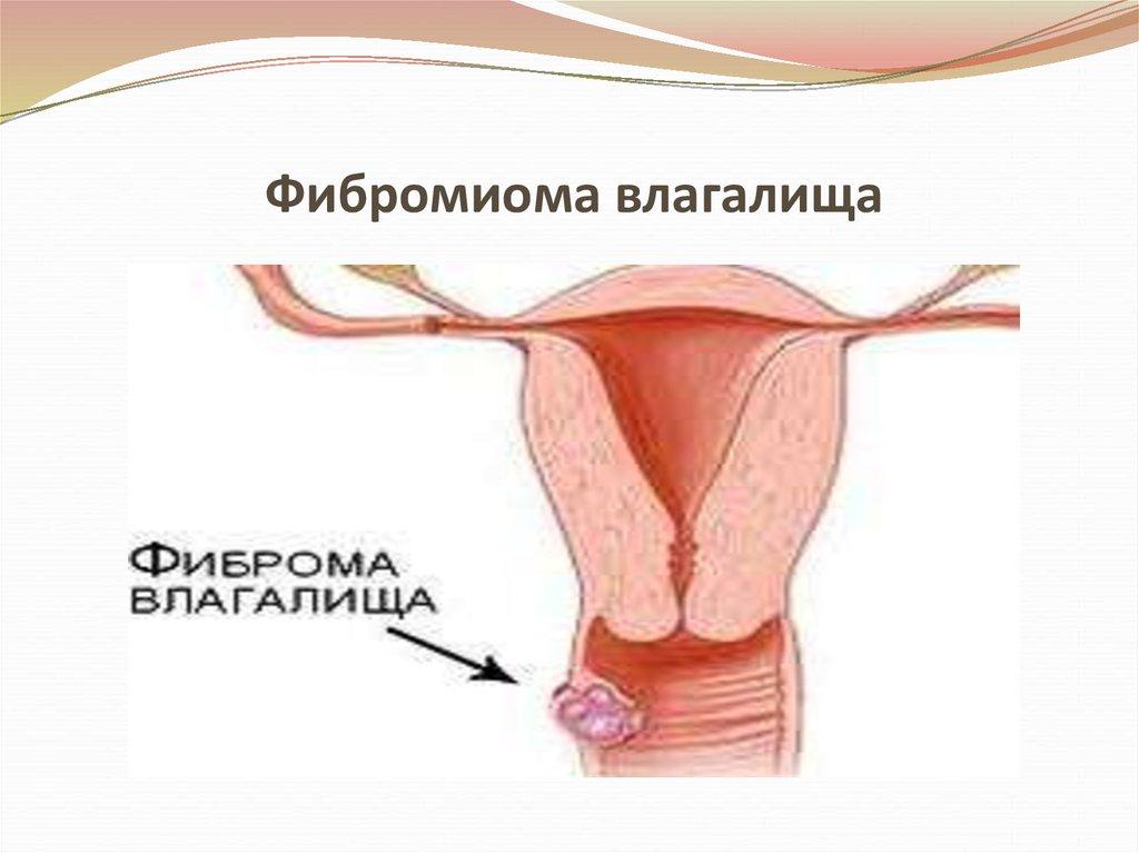 Секс при фиброматозе тела матки