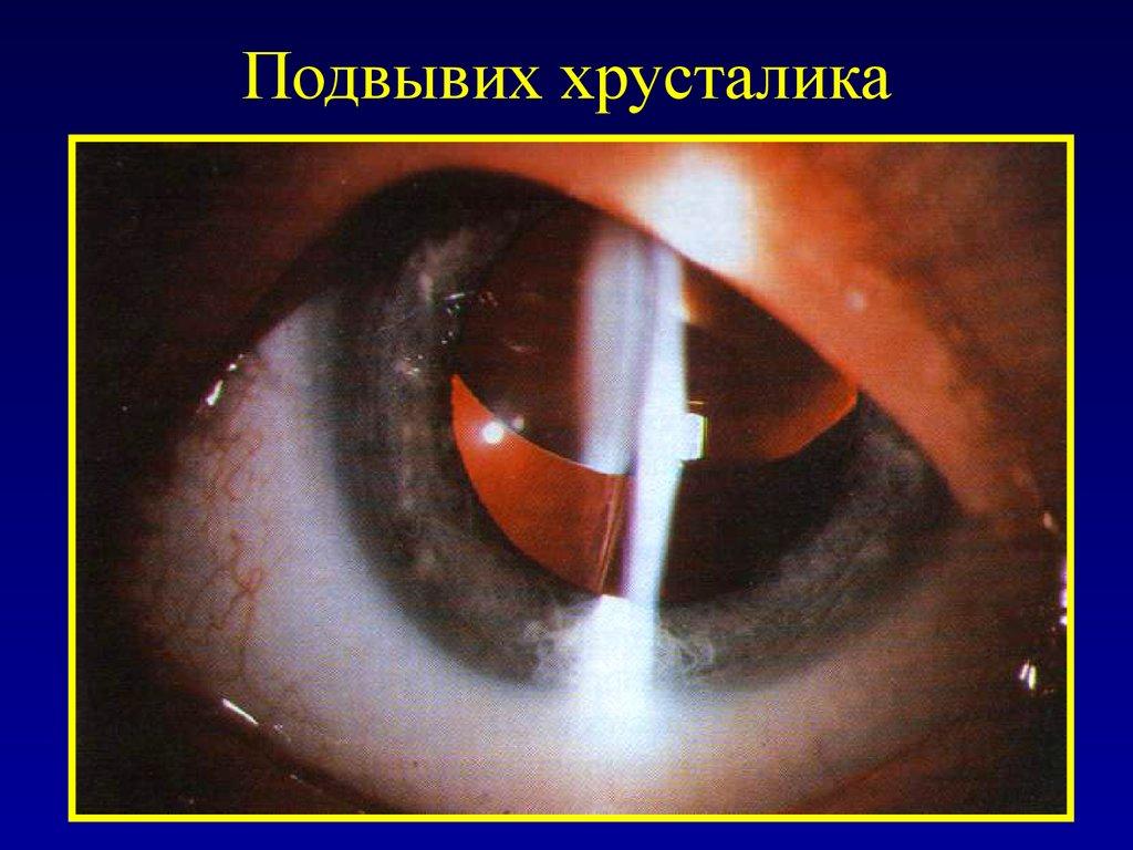 заболевания вызванные паразитами человека