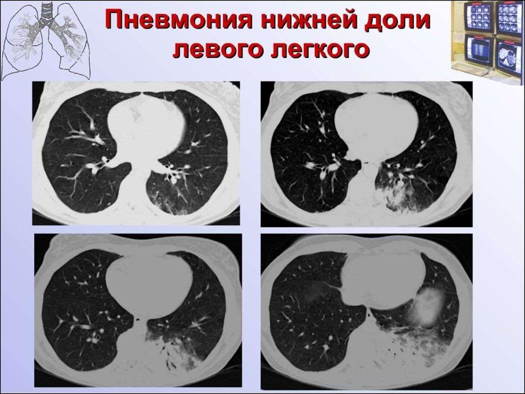 Белое пятно у ребенка в горле чем лечить