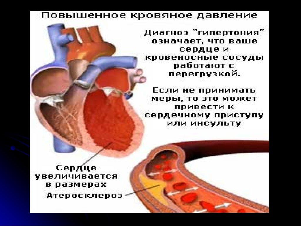 Вторичная (эндокринная) артериальная гипертензия: лекция ...