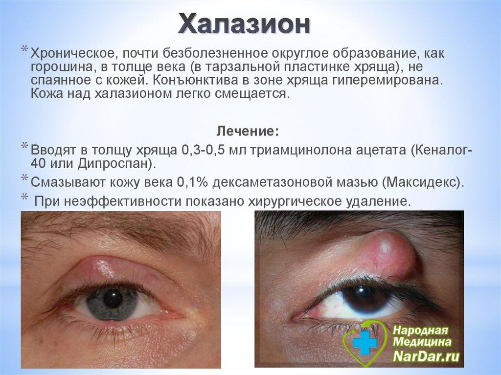 термобелье холизион на глазах у детей все ДЕТСКИЕ