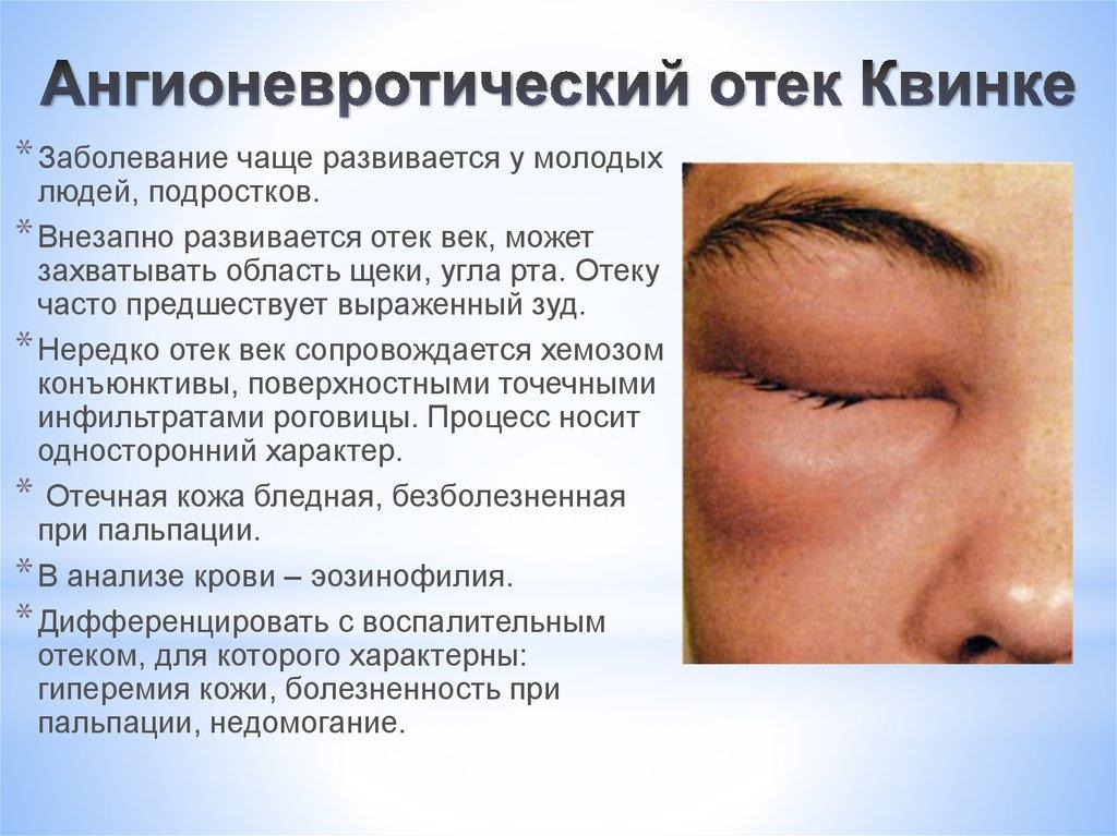 аллергия на краску для ресниц что делать