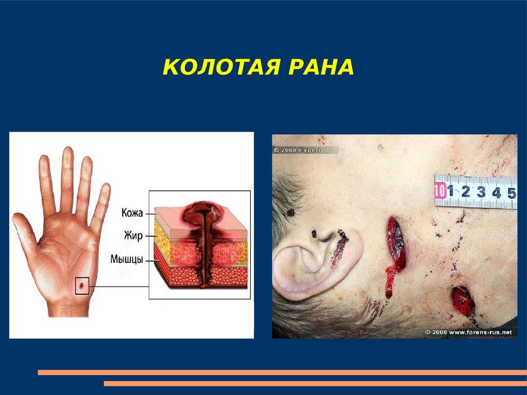 основы медицинских знаний и здорового образа жизни
