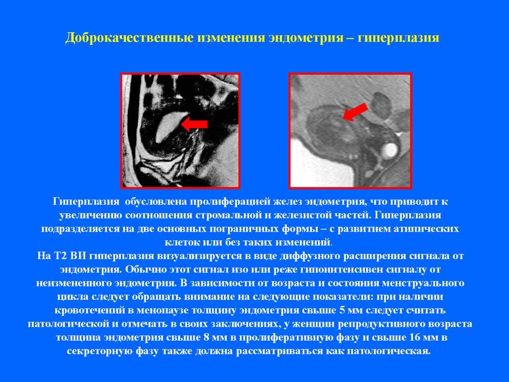 Может ли пройти гиперплазия эндометрия