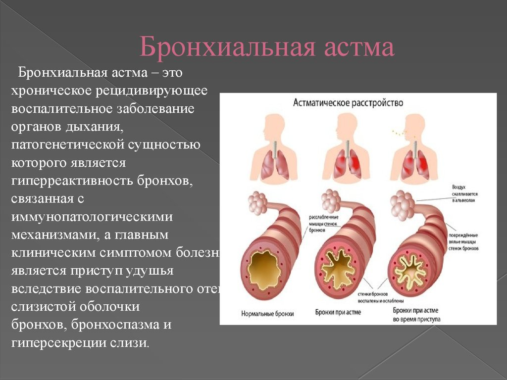 бронхиальная астма контрольная работа