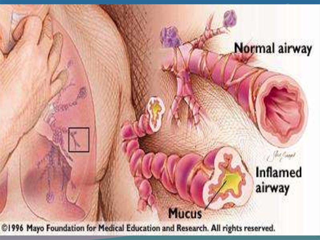 бронхиальная астма у детей лечение народные средства
