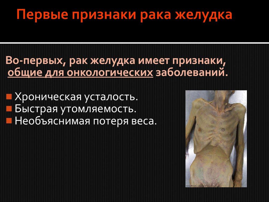 Раком у забора онлайн фото 132-854