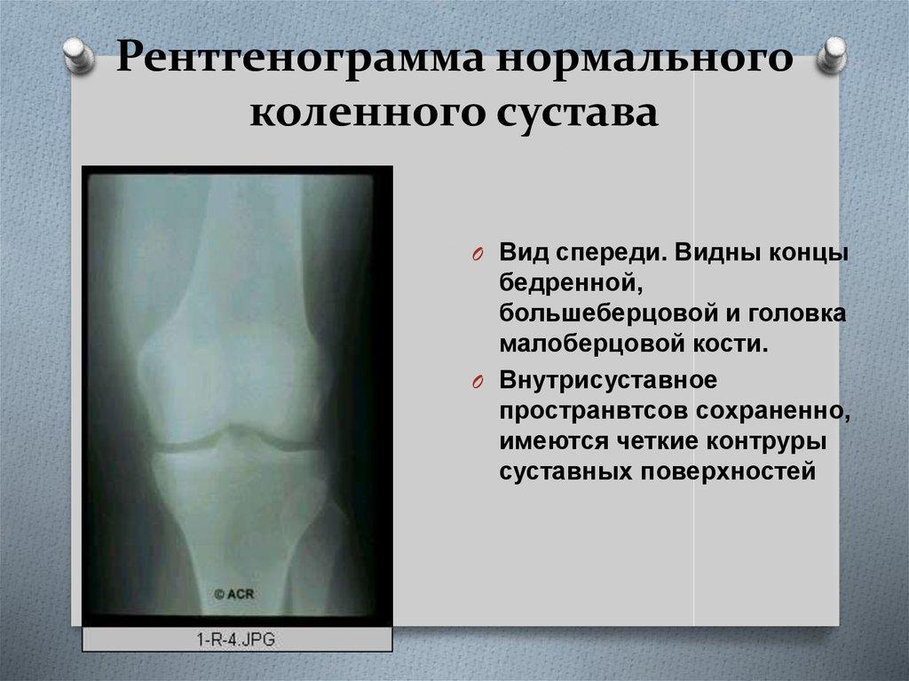 снимки коленных суставов