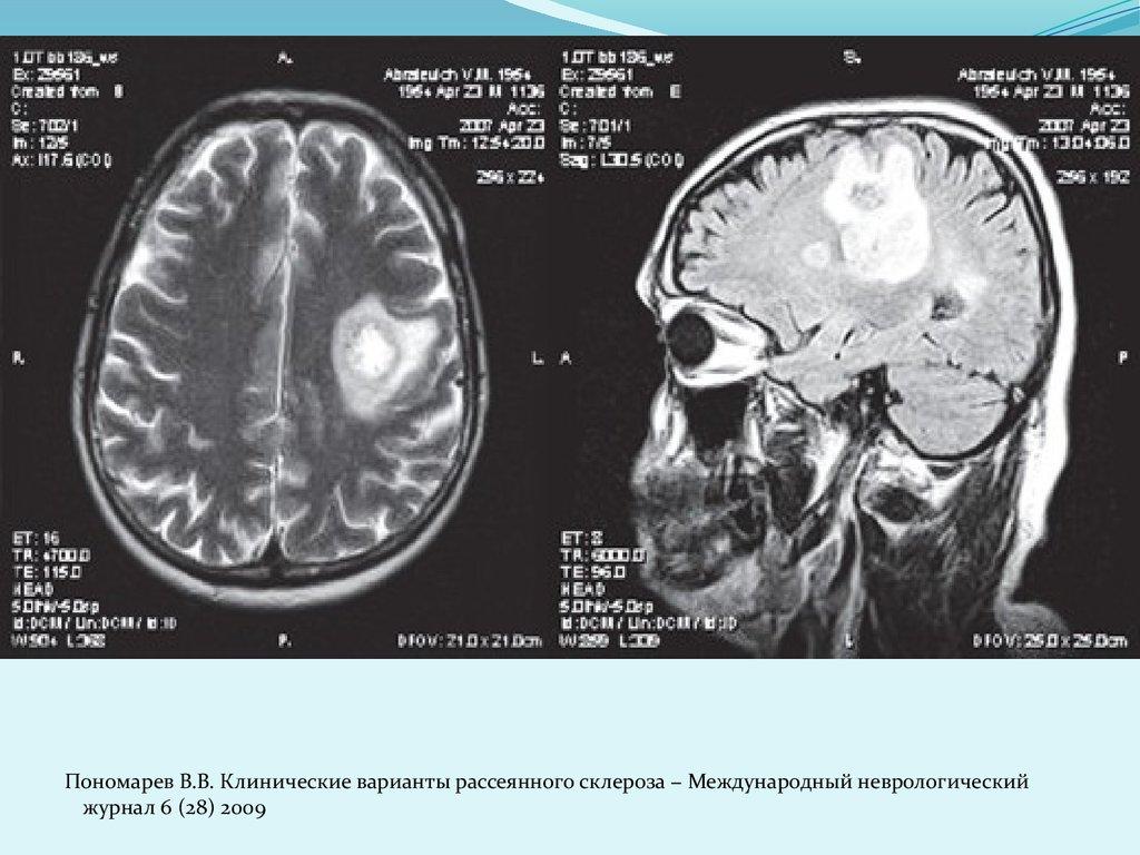 Признаки рассеянного склероза на мрт головного мозга