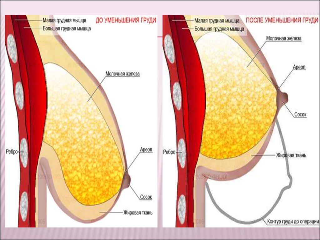 Почему уменьшается грудь после гв