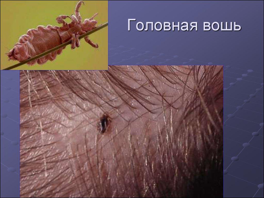 кровососущие паразиты человека