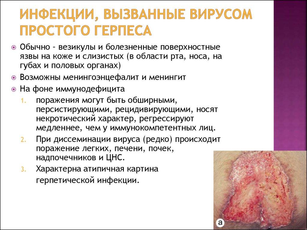 ВИЧ инфекция - презентация онлайн