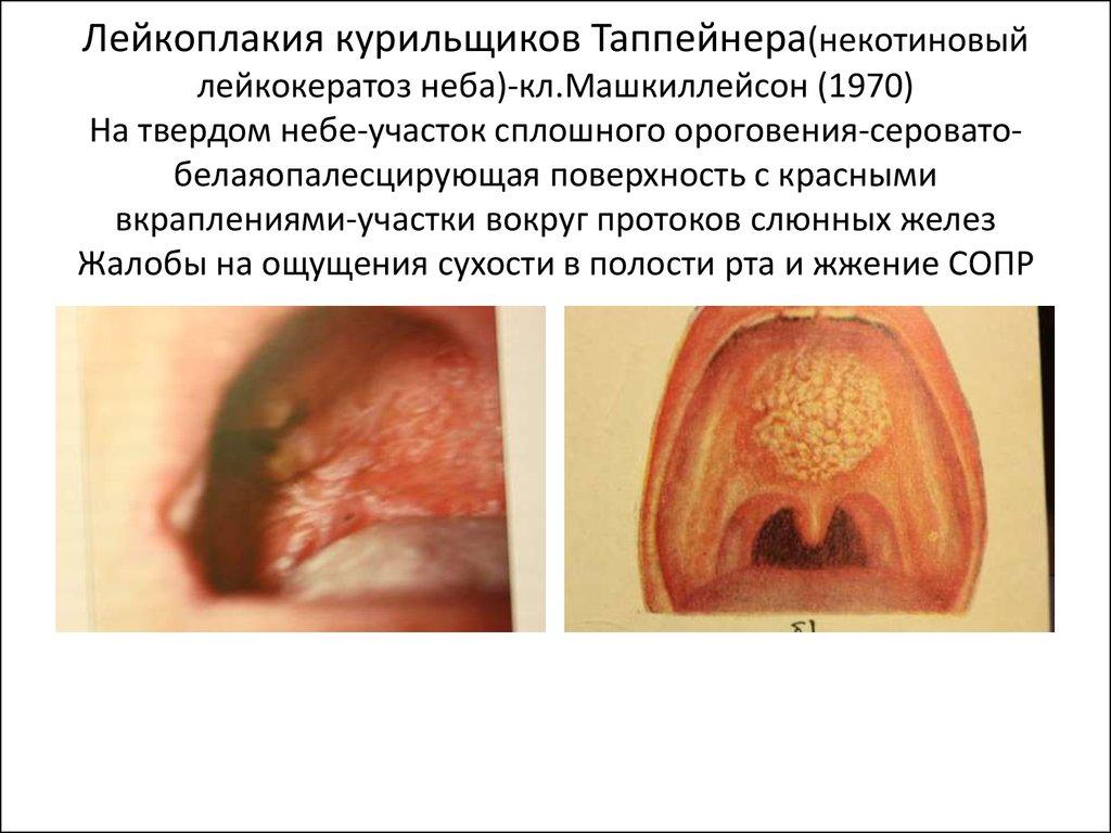 simptomi-ozhoga-slizistoy-vlagalisha