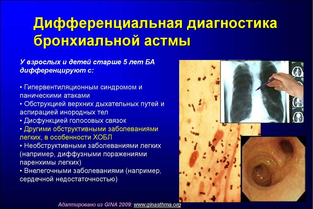 дифференциальная диагностика бронхиальной астмы с муковисцидозом