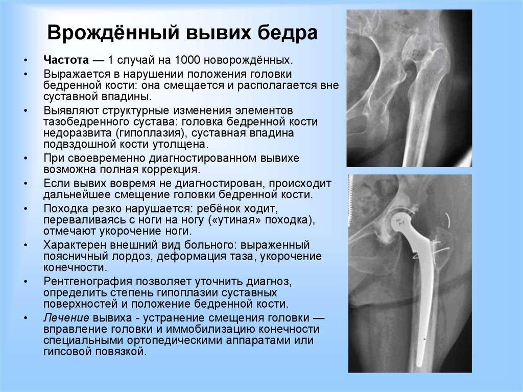 коксоартроз бедренного сустава симптомы