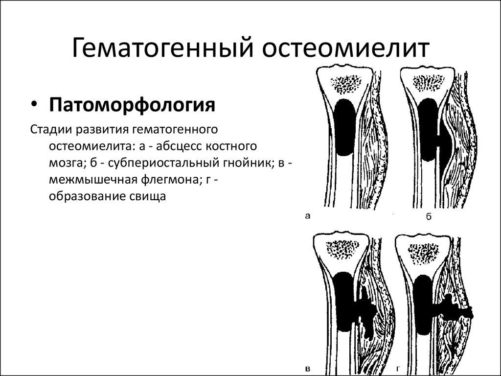 Острый Гематогенный Остеомиелит Реферат